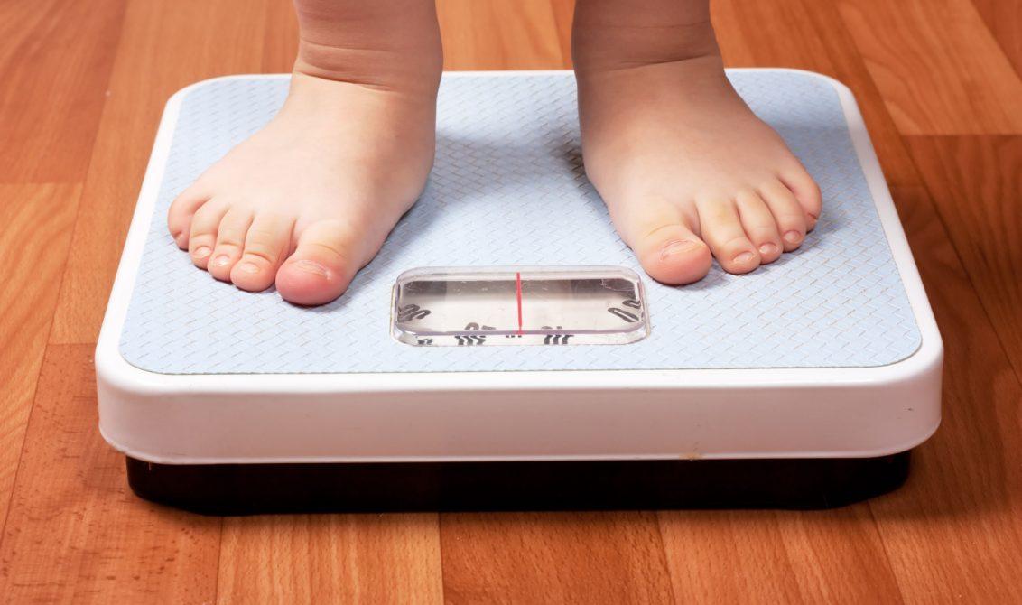 Obesidad infantil, la pandemia del Siglo XXI